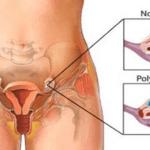 Limpie los quistes de ovario con la mejor receta. Reduce la hinchazón, el dolor abdominal y lumbar inferior.