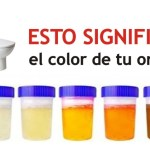 El Color de la orina dice todo sobre tu salud, ¡descubre su significado!