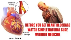 11 Nutrients and 14 Natural Foods that avoid or reverse heart blockages and clean your clogged arteries