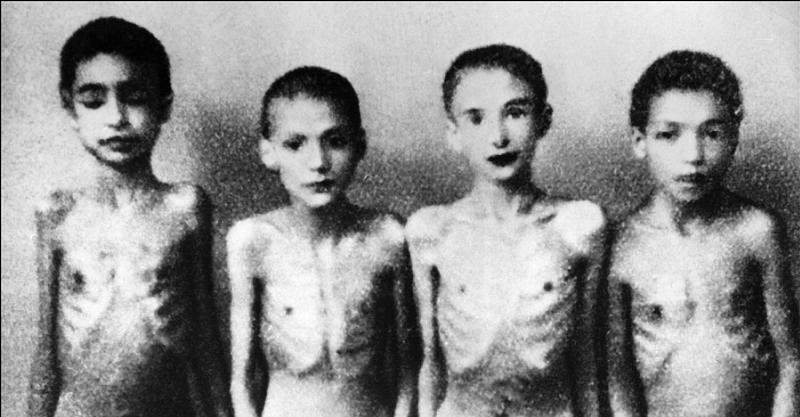 Image result for NAZI Unethical medical testing on children