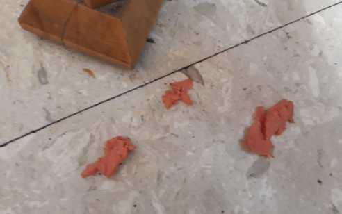 בת 3 נחנקה מנקניק בתל אביב – מצבה אנוש