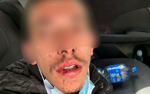 פקחי תנועה ערבים תקפו באלימות קשה חרדי בירושלים – המשטרה שיחררה את התוקפים