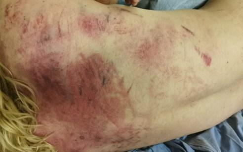 הלינץ' האכזרי בשכונת שמעון הצדיק: תיעוד פציעות הצעיר היהודי שהותקף על ידי ערבים בירושלים