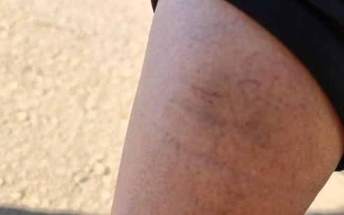 """ח""""כ בן גביר הותקף בנחל חצבאני על ידי צערים ערבים – העוזרת הפרלמנטרית נפצעה ברגלה"""