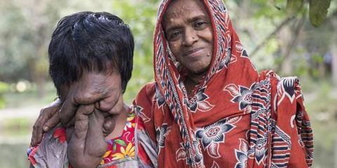 Η γυναίκα που χάνει το πρόσωπό της από σπάνια ασθένεια (video)