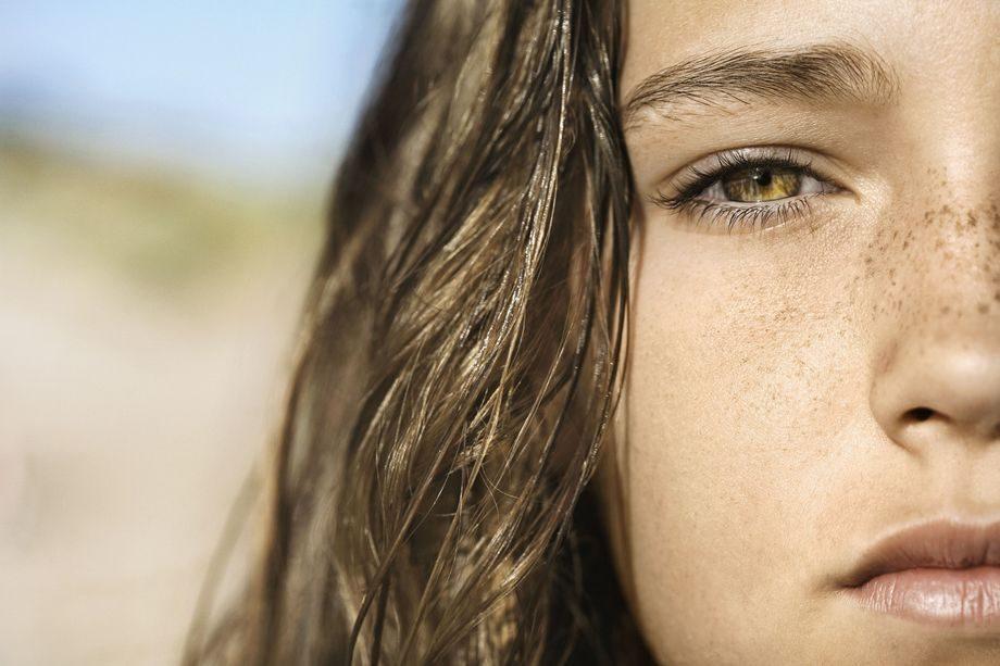 freckles-moles-summer-check-health-wellness