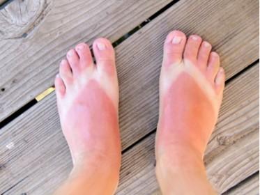 Sun Safety for Travellers - Sun Burned Feet