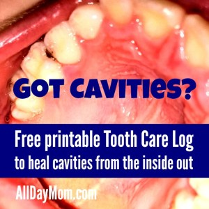How to heal cavities naturally—free printable tooth care log