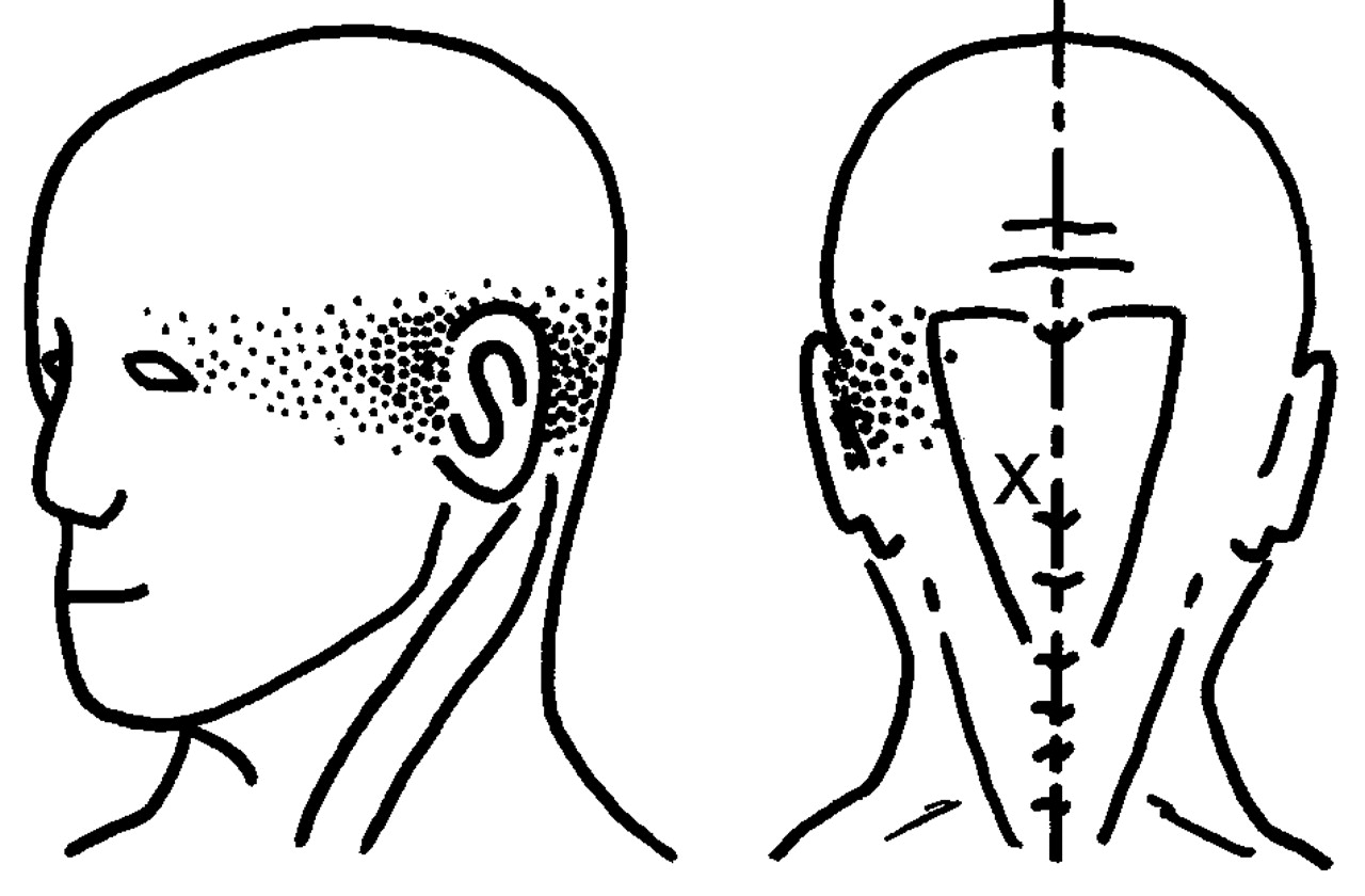 Stiff Neck Migraines And Eye Pain Release Suboccipital