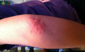 На коленках красные пятна чешутся. Красные пятна на локтях и коленях. Общие правила и методы лечения