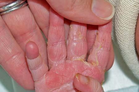 care sunt petele de la varicoză peptide cu variante varicose vene