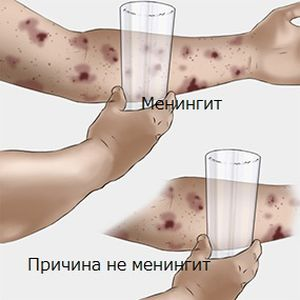 Розовые пятна на теле не болят, не чешутся: фото, что за ...