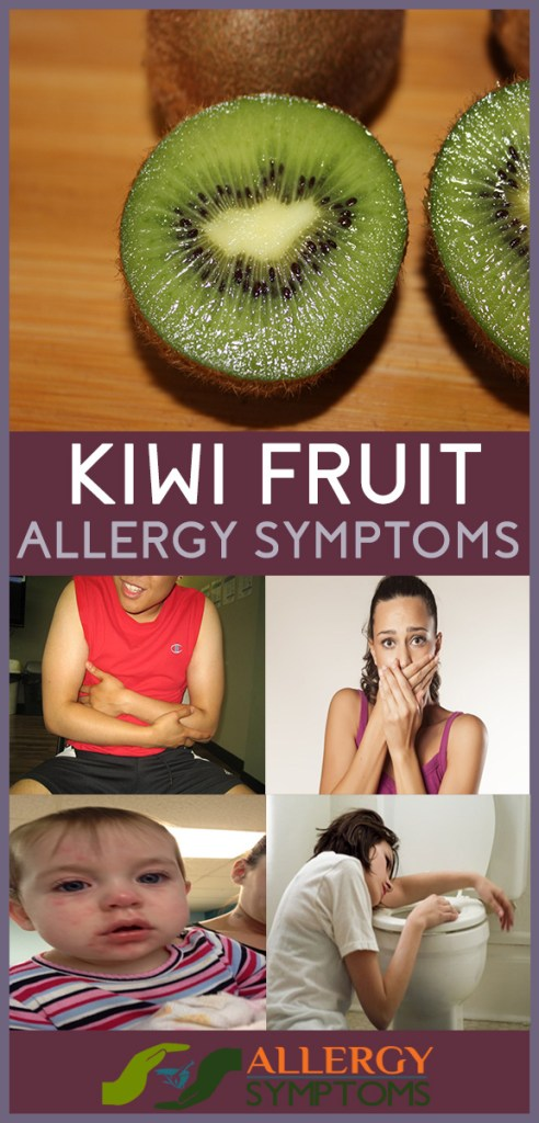 kiwi fruit allergy symptoms