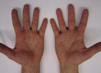 Nickel Allergy Symptoms