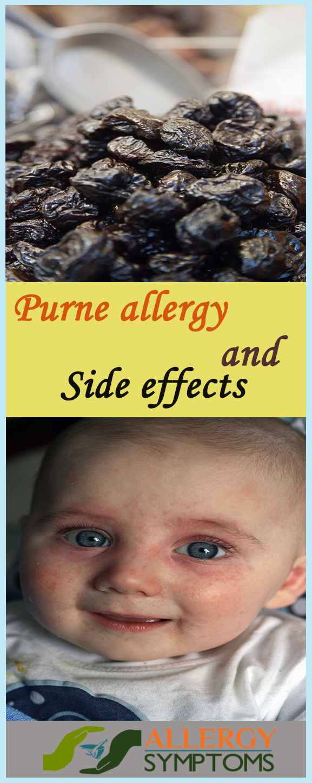 prune allergy