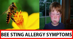 Bee Sting Allergy Symptoms FB