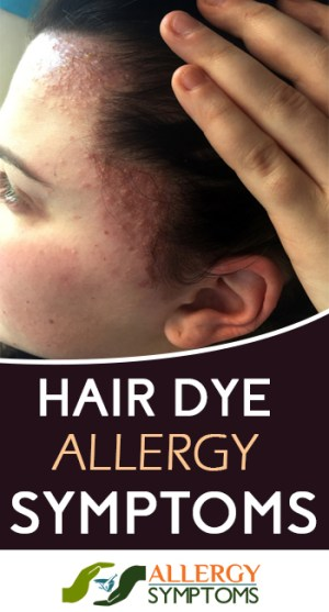 HAIR DYE ALLERGY SYMPTOMS_1