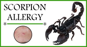 Scorpion Allergy FB