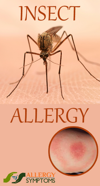 Insect Allergy