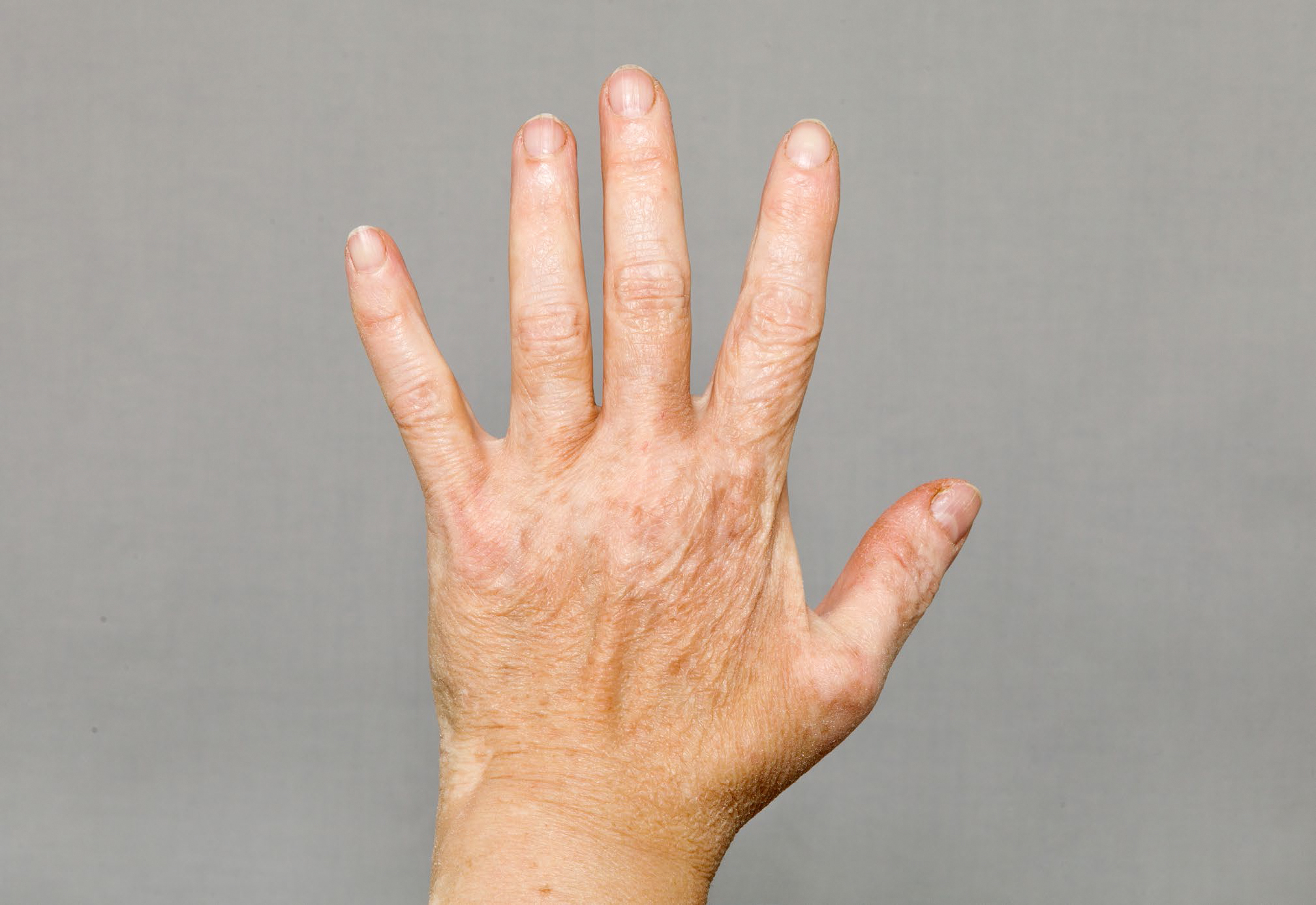 Vitiligo_on_hand.jpg