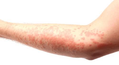 Bleach Allergy - AllergyKB