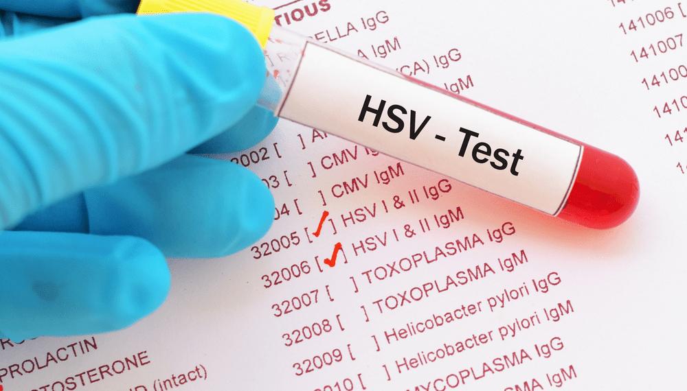 HSV test