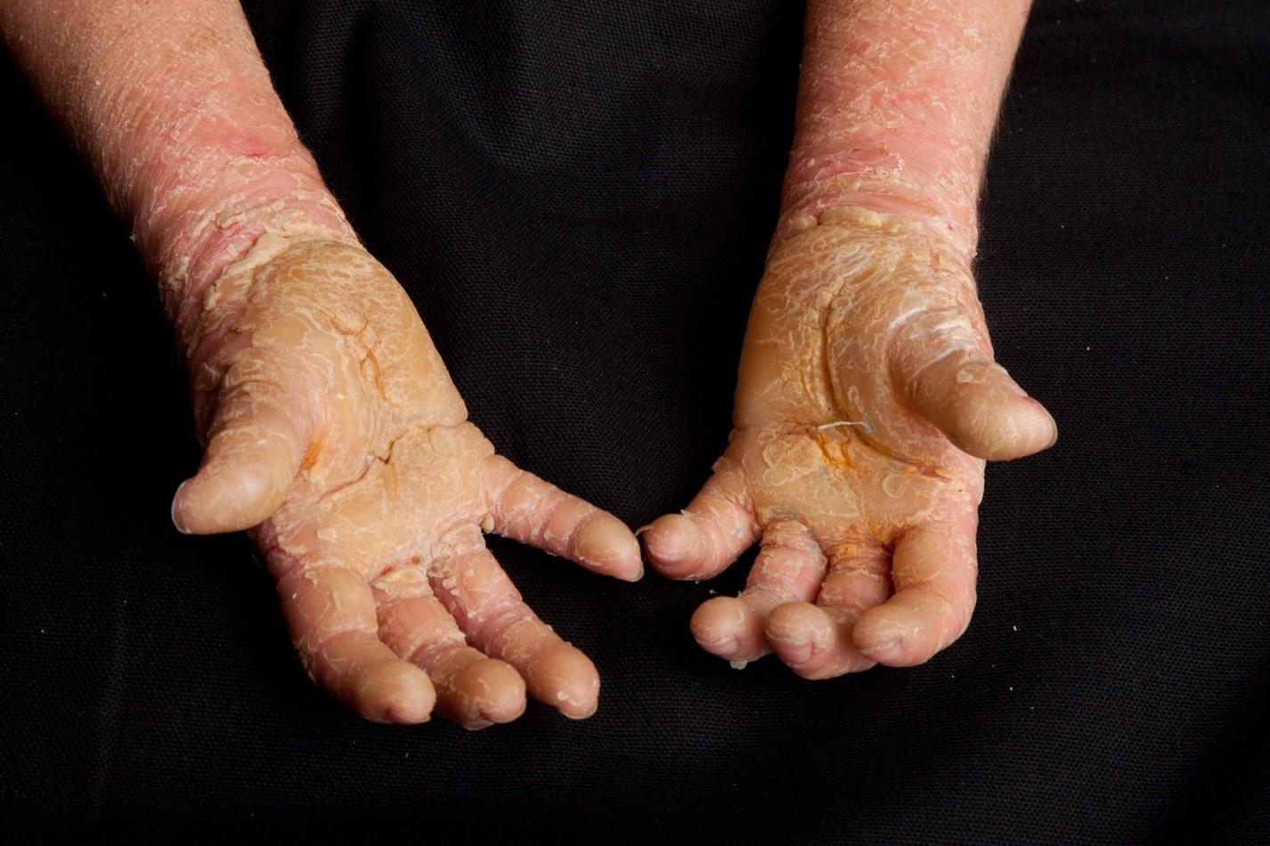 Epidermolytic Ichthyosis hands