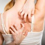 PR022 for Atopic Dermatitis (Eczema)