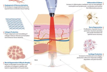 History of Cold Laser Therapy