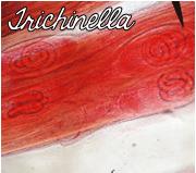 trichinella.png