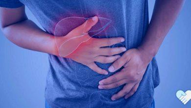 أعراض وعلامات تليُّف الكبد