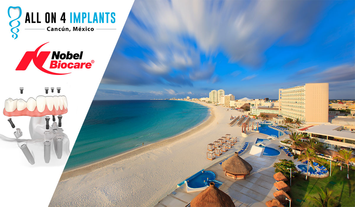 Dental Implants in Cancun!