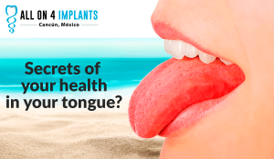 All on 4 Dental Implants: Secrets of your health that your tongue can reveal.
