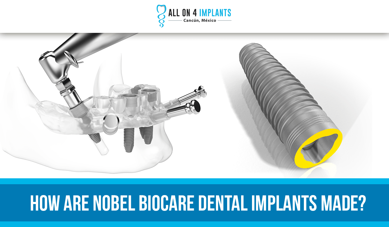 How are Nobel Biocare Dental Implants made?