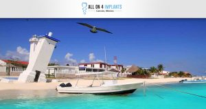Relax in Puerto Morelos during your All-on-4 vacation!