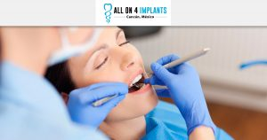 Can you get All-on-4 with Sedation Dentistry?