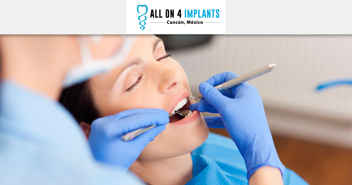 Can Periodontal disease affect my All-on-4 implants?