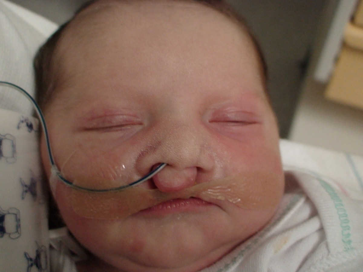bilateral cleft lip/palate feeding tube