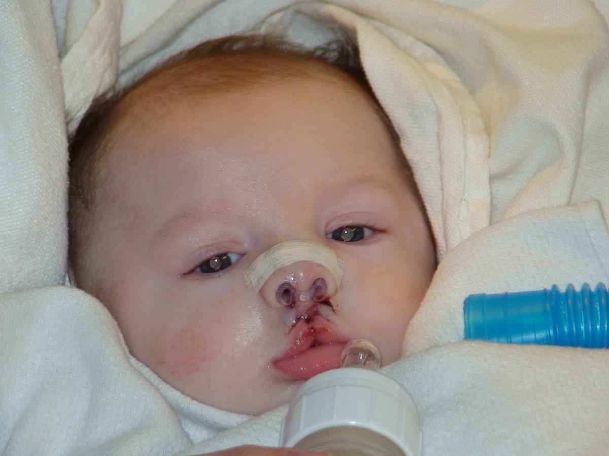 Post bilateral cleft lip repair surgery