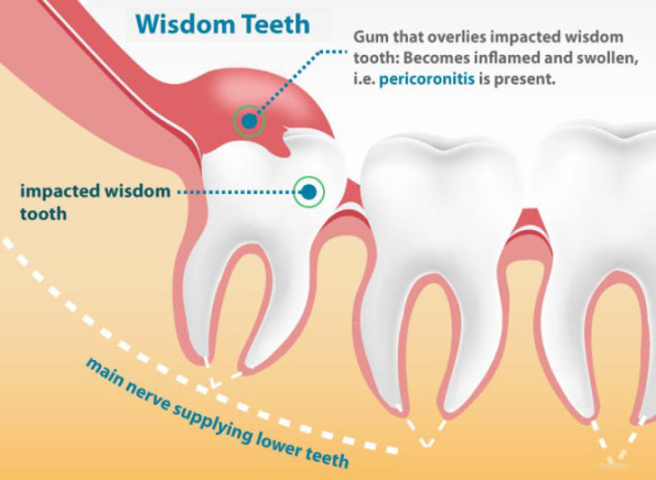 Wisdom Tooth Extraction in Barsha, Dubai