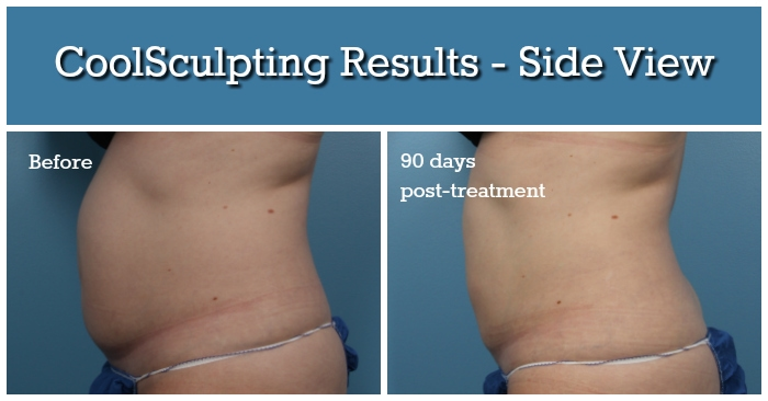 CoolSculpting Results - Side View