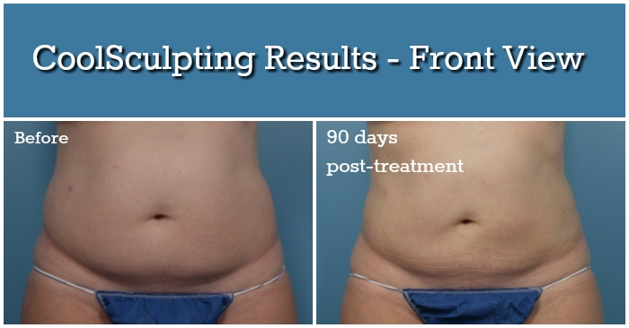 CoolSculpting Results - Front View