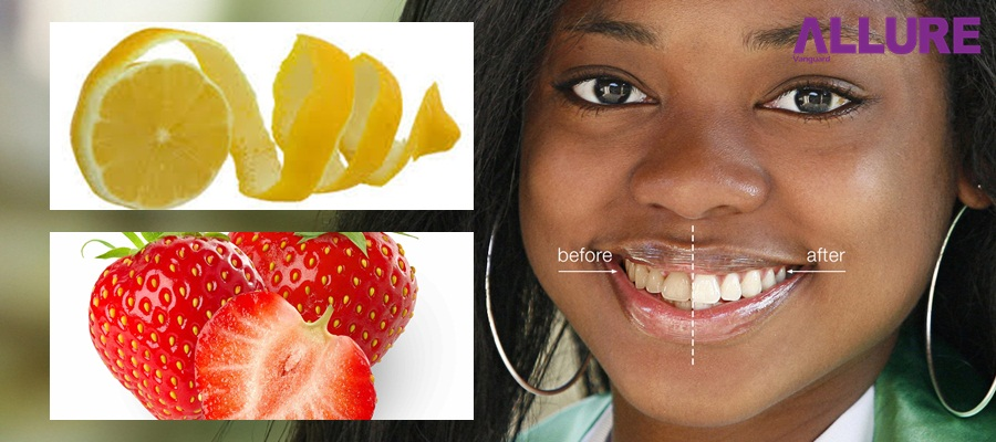teeth-whitening-allure-vangurad
