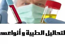 Photo of التحاليل الطبية و أنواعها Medical analysis and types