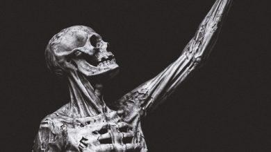 """صورة وهم كوتار """" متلازمة الجثة السائرة """""""