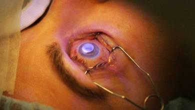 "Photo of عمليات تصحيح البصر المعروفة بـ""الليزك"".. هل لها آثار جانبية؟"