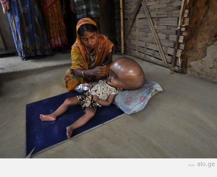 INDIA-CHILD-HEALTH-ILLNESS-HYDROCEPHALUS