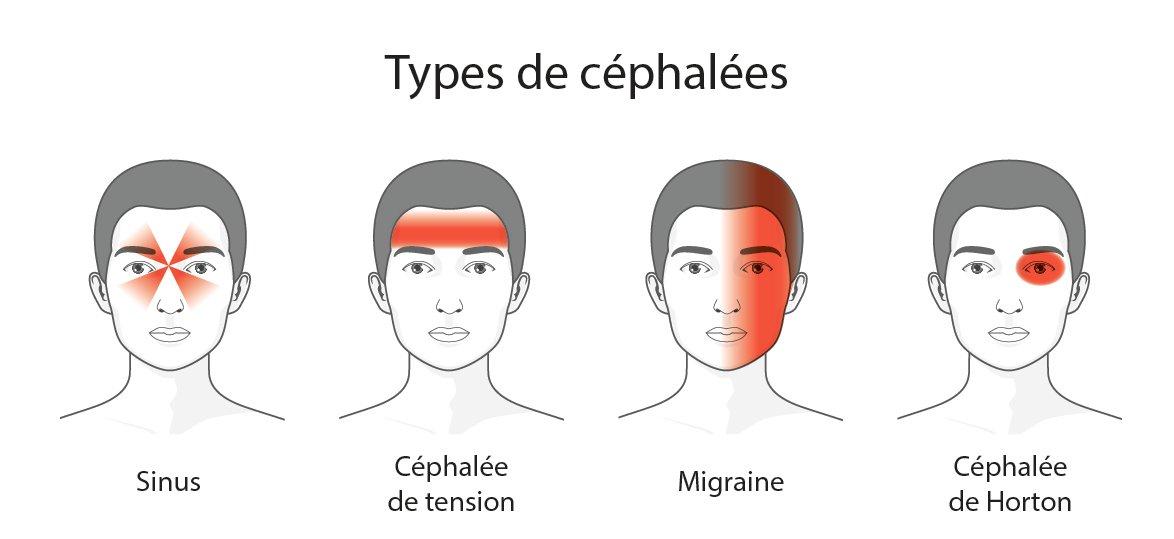 différents type de maux de tête