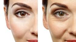 خلطات طبيعية بديلة للفيلر للتخلص من تجاعيد حول العين