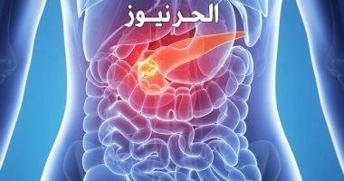 سرطان المرارة والبنكرياس وكل ما تريد معرفته عنها وطرق العلاج